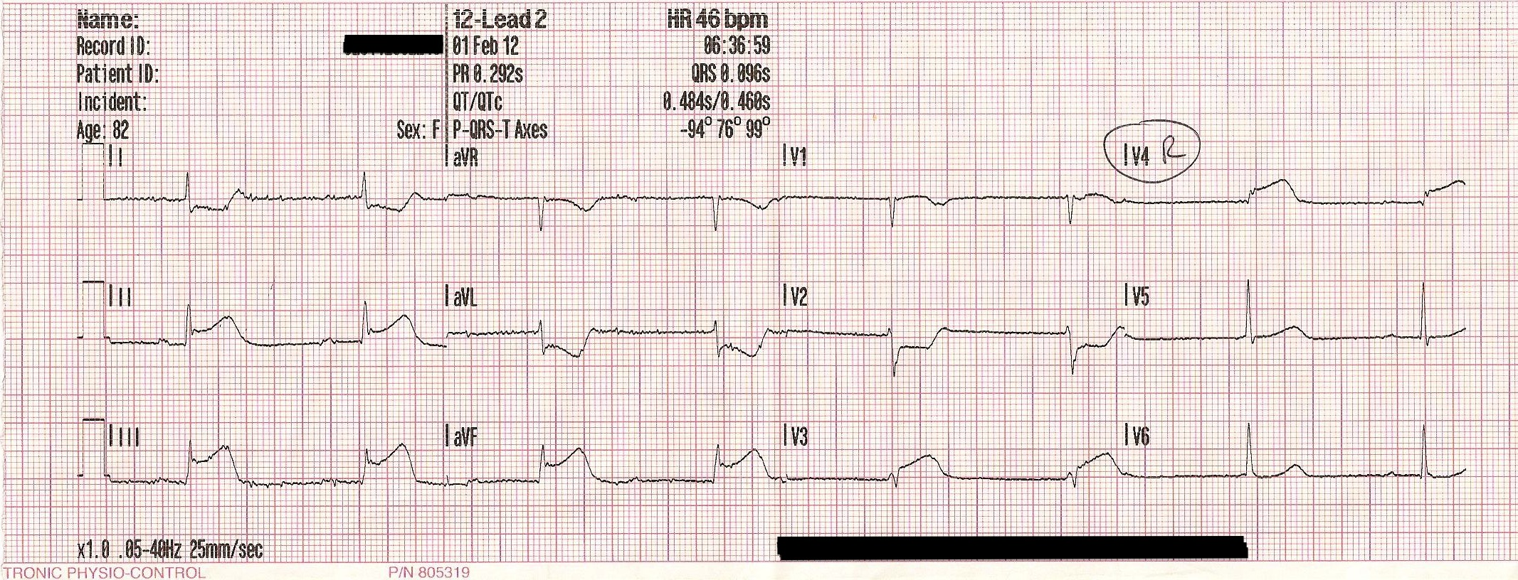complete heart block case study Department of small animal clinical studies, faculty of veterinary medicine,  university of lie`ge, lie`ge,  third degree atrioventricular (av) block is a  complete.